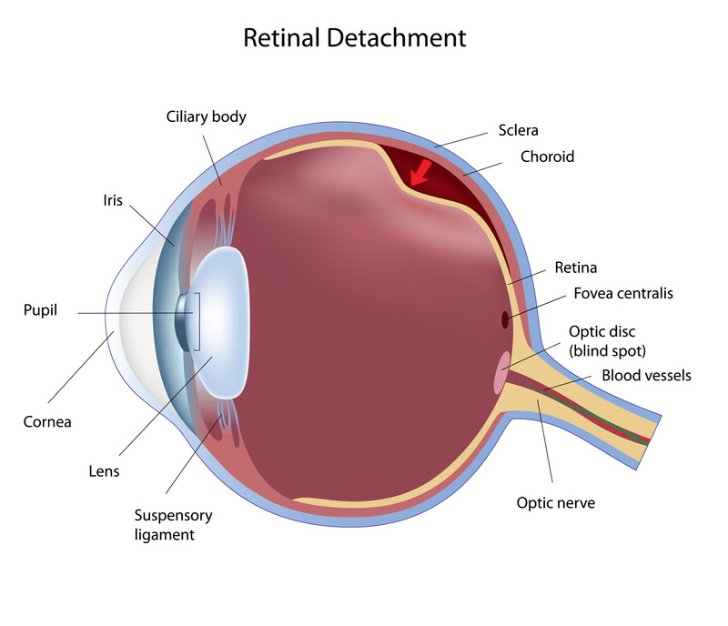 retinal detachment treatment orange county, Skeleton