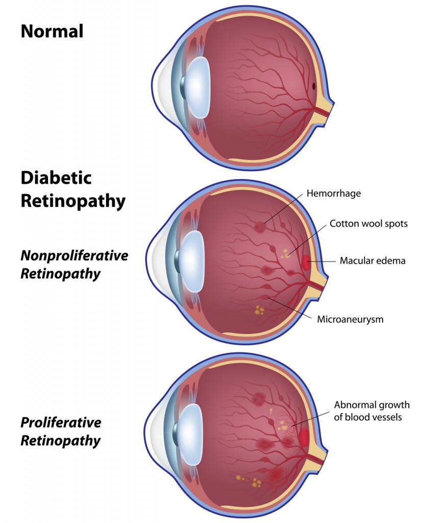 Diabetic Retinopathy VMR Institute Huntington Beach, CA 92647