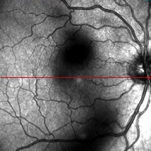 picture of retina before floater vitrectomy