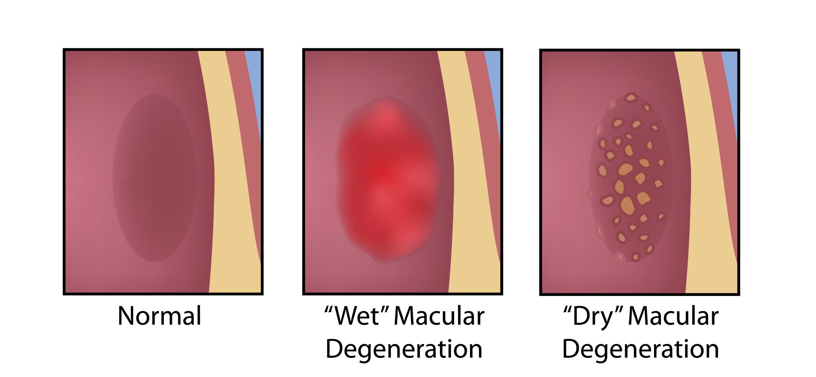 Macular Degeneration Treatment In California Amd