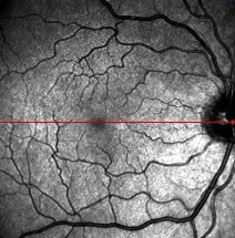 picture of retina after floater vitrectomy