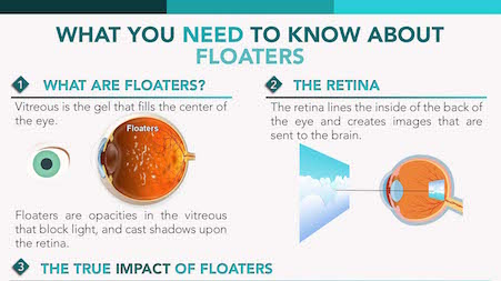 Floater Vitrectomy